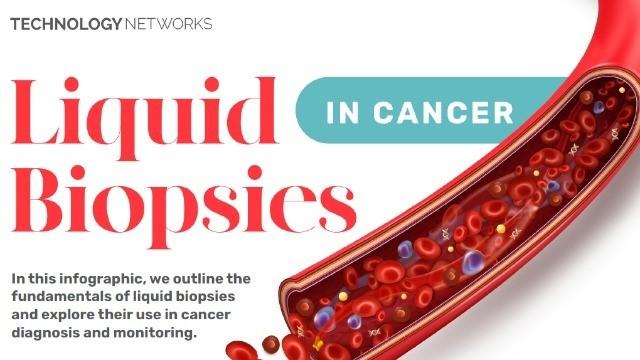 Prueban un test de sangre para detectar cáncer antes que aparezcan síntomas